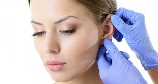 otoplastica earfold
