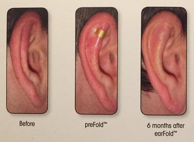 otoplastica con earfold