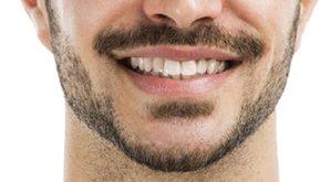 trapianto baffi