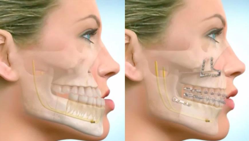chirurgia maxillo facciale